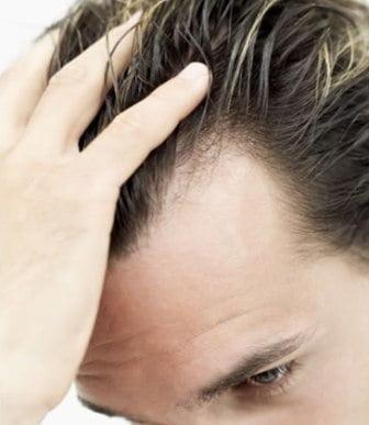 Căderea părului? Încărunţire timpurie? Află ce rol poate avea dioxidul de carbon în revigorarea părului