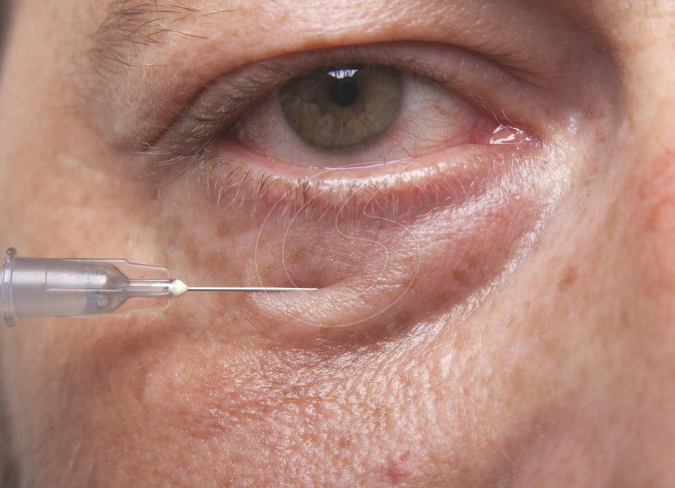 Acidul hialuronic – vedeta intervenţiilor antirid