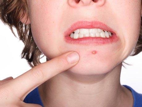 Tratamente imediate pentru acnee