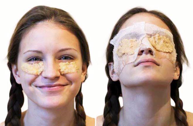 CINCI solutii naturale RAPIDE pentru ochii obosiţi şi iritaţi