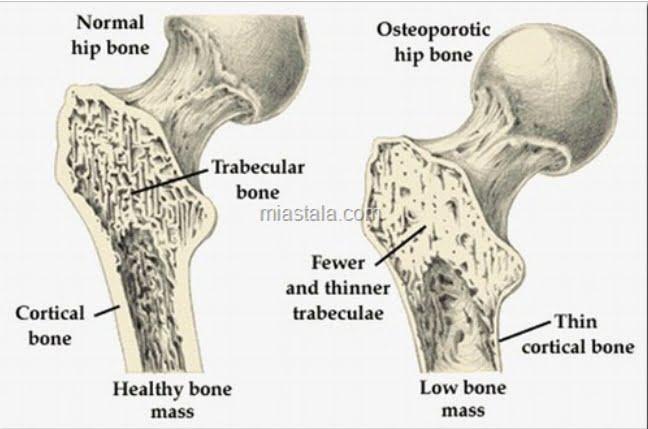 Tratamentul naturist cu COADA CALULUI  impotriva OSTEOPOROZEI