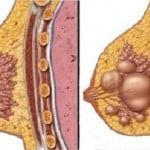 5 simptome atipice ale cancerului mamar