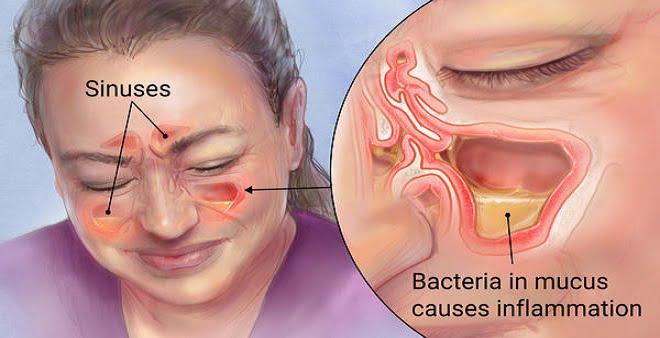 bacteriamucus