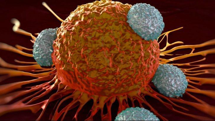 celule_cancer_poza_poza_poza_04151500