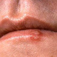 Cum să scapi de herpes simplu şi rapid