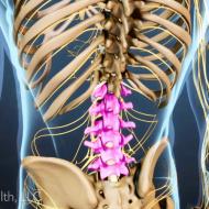 Adevaratele cauze ale durerilor de spate si cum le putem vindeca