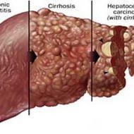 9 semne care indică afecţiuni ale ficatului