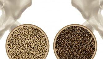 10 remedii naturiste pentru osteoporoza
